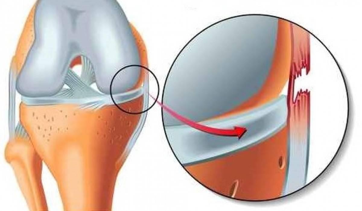 Cele mai comune accidentări în sport. Cauze și simptome